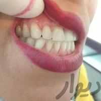 دندانسازی،باضمانت،دندان مصنوعی،دندان سازی
